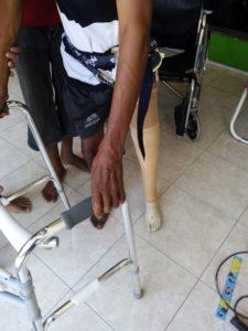pengguna kaki palsu
